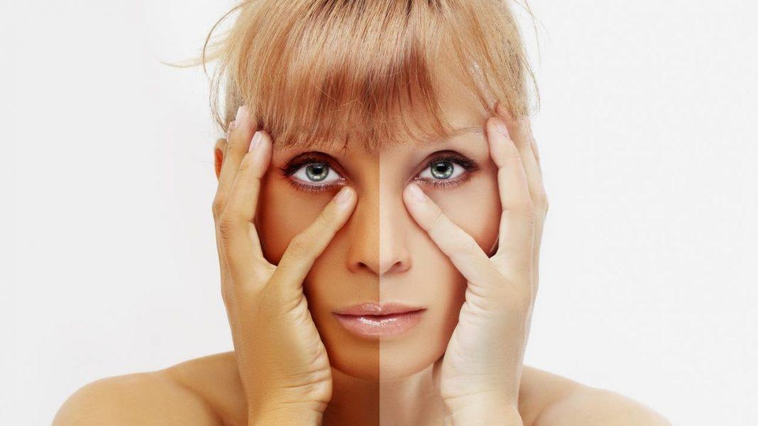 Femme bronzée d'un côté du visage